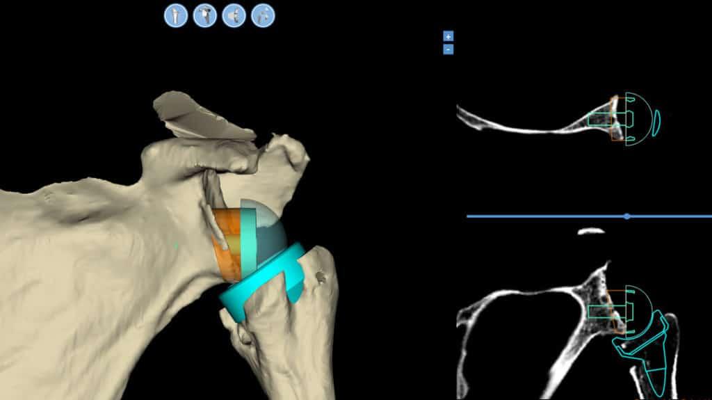 CT Planning Shoulder